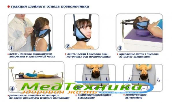 Вытяжение шейного отдела позвоночника - особенности процедуры.